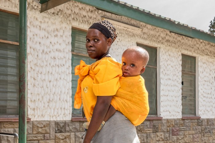 mother with child with hydrocephalus